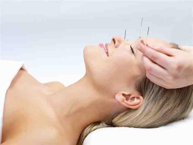 A terapia de acupuntura - medicina alternativa. Retrato de uma mulher bonita em acupuntura terapia